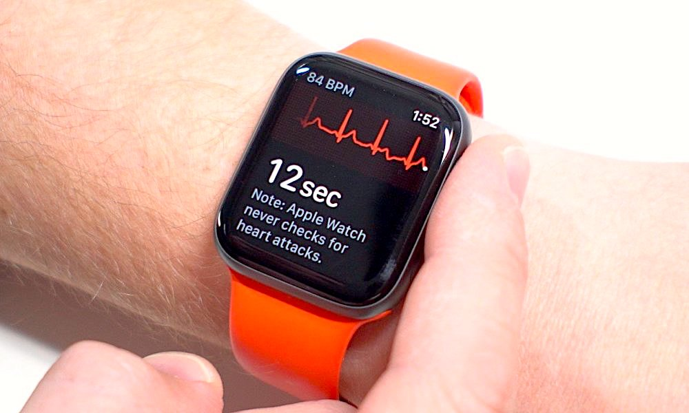 Apple Watch Electrocardiogram (ECG): 5 Things You Need to Know!